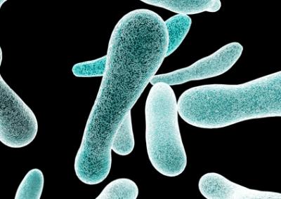 Basic Legionella Management